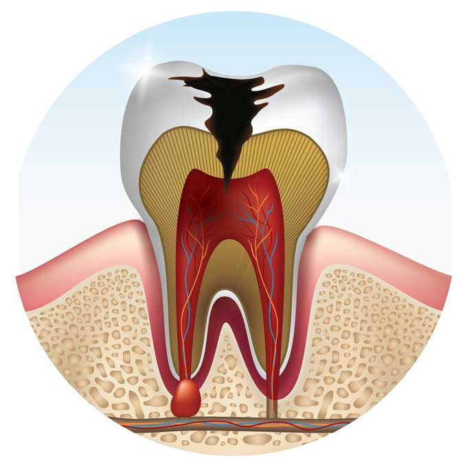 what is a Cavity