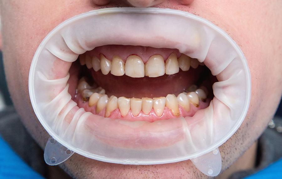 Expander Teeth