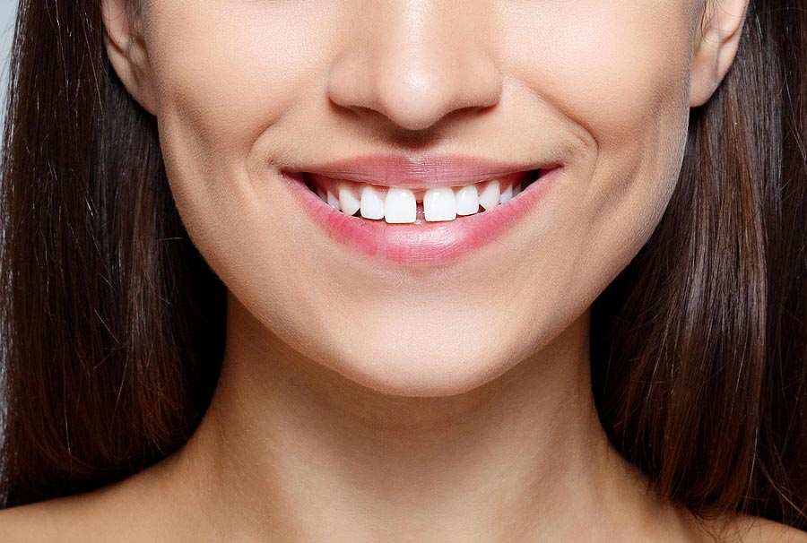 How Do Teeth Gap Bands Work