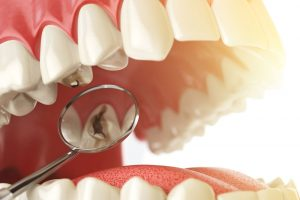 How to Prevent Denture Damage