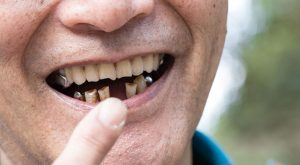 Partial dentures work by helping you if you are missing teeth