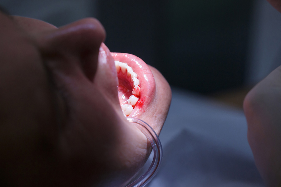 Teeth Bleeding Causes and At-Home Remedies