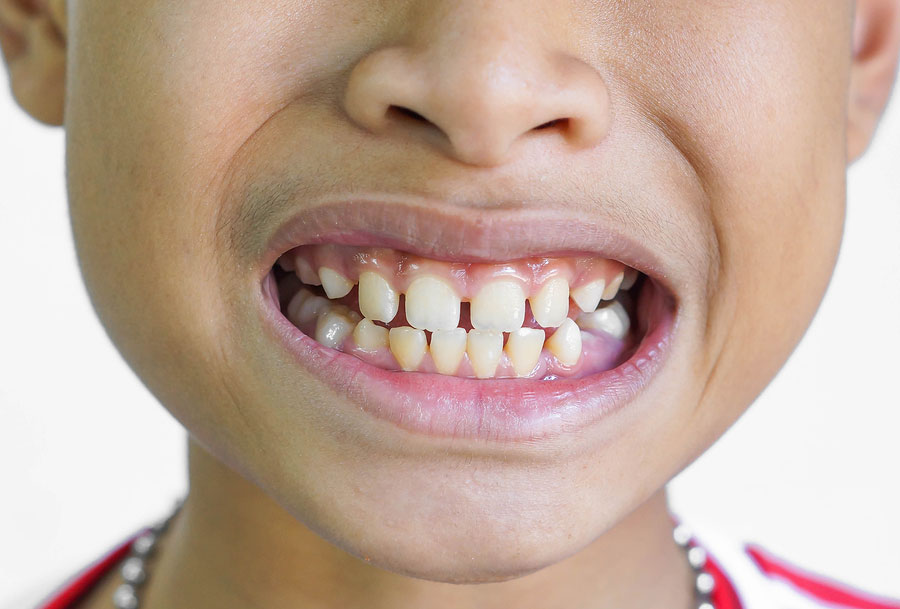 What Causes Gap Teeth and Can You Create a Gap