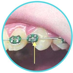 broken or loose braces image