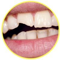 chipped or broken tooth image