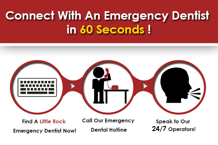 emergency dentist Little Rock