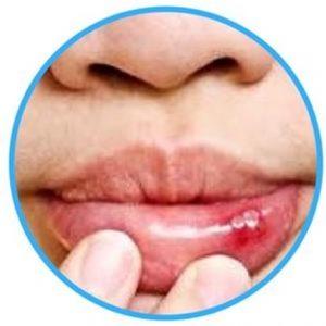 lips injury image