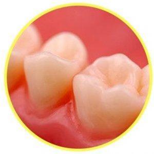 teeth close up image